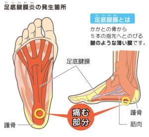 足底筋膜症